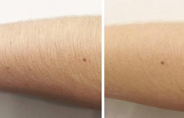 Arm hair lightening Before after