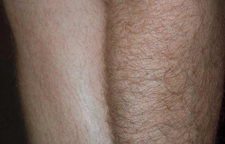 Leg hair bleaching before and after