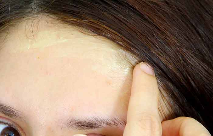 How to remove dye, hairline and scalp